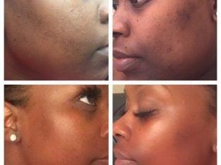 Microdermabrasion and Pigmentation medi spa facials – Mobile