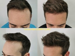 Hair Transplant Clinic in London | Fortes Clinic
